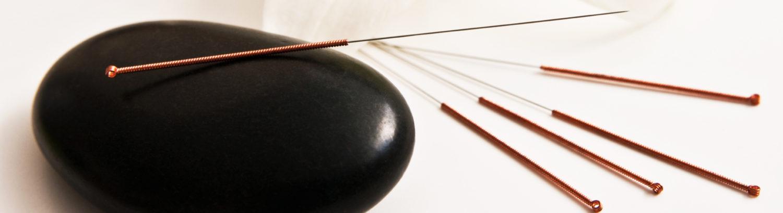 Naturheilpraxis für Traditionelle Chinesische Medizin